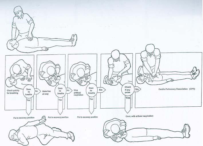 心肺复苏操作步骤