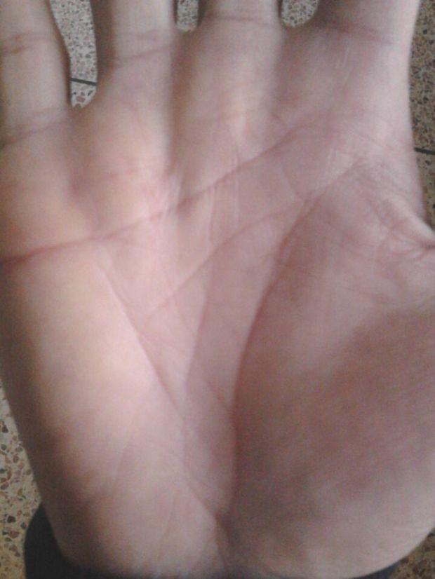 掌纹手相我的生命线有岛纹怎么办
